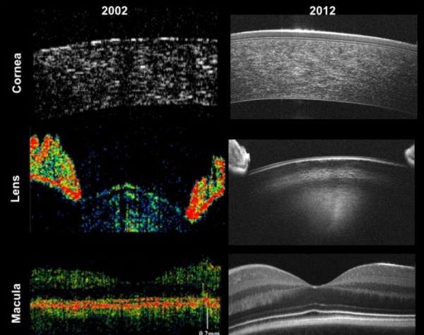 Twenty-five years of optical coherence tomography: the paradigm shift in sensitivity and speed provided by Fourier domain OCT