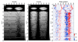 Classification of biological micro-objects using optical coherence tomography: in silico study
