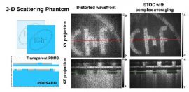 Spatio-Temporal Optical Coherence Imaging–a new tool for in vivo microscopy