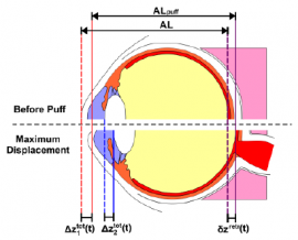 High-speed OCT-based ocular biometer combined with an air-puff system for determination of induced retraction-free eye dynamics