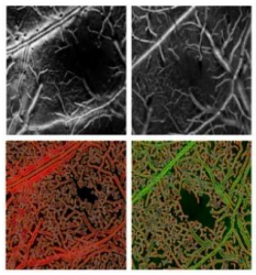Enhancing microvasculature maps for Optical Coherence Tomography Angiography (OCT-A)